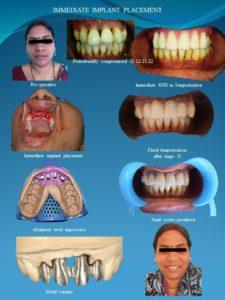 Immediate Implant procedure