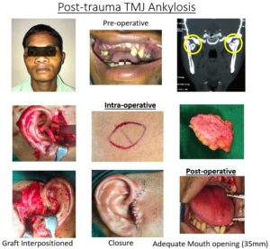TMJ ankylosis